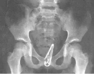 CT:卡在阴道内的发卡