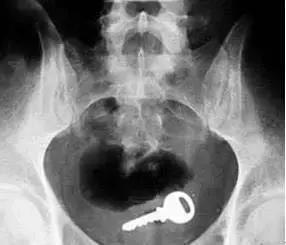 CT:卡在阴道内的钥匙